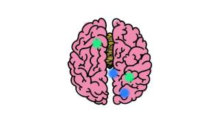 Understanding Disorders of the Corpus Callosum Animated Video (by NODCC)