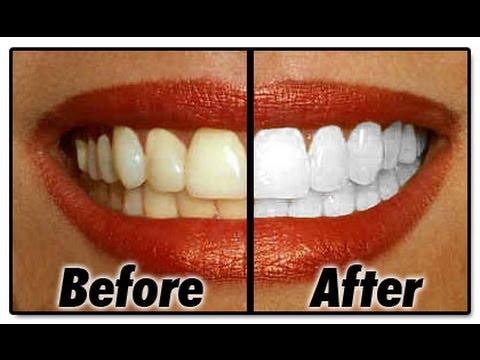BLANQUEA tus dientes en MINUTOS remedio casero