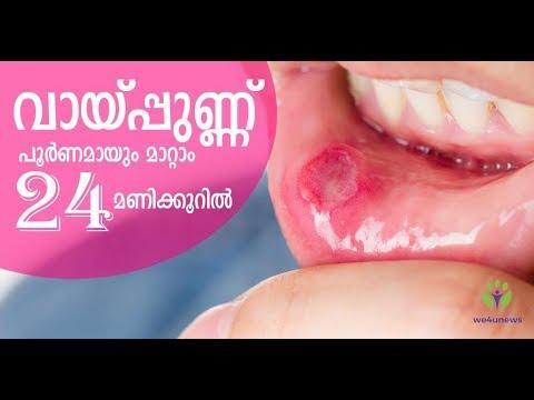 വായില് പുണ്ണ് മണിക്കൂറുകള്ക്കകം പൂര്ണ്ണമായും മാറാന് /Malayalam Health Tips