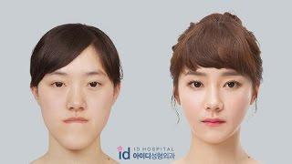 [Let me in Vietsub] Phẫu thuật thẩm mỹ Hàn Quốc - phần 3   Bệnh viện ID