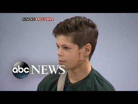 Xxx Mp4 13 Year Old Shark Attack Survivor Returns To School 3gp Sex
