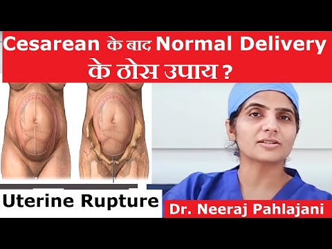 Xxx Mp4 क्या C Section के बाद नार्मल डिलीवरी पॉसिबल है Normal Delivery Cesarean 3gp Sex
