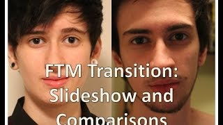 FTM transgender transition timeline: slideshow and comparisons (nearly 3 years on T)