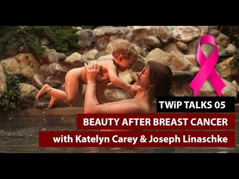 TWiP Talks 05 Beauty After Breast Cancer