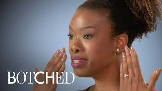Botched | Kelli's Desire for a Smaller Nose Ends in Disaster | E!