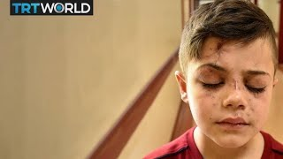 The story of a Syrian boy who woke up blind