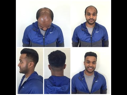 Men's adhesive non-surgical lace front hair piece system installation Pacific Hair