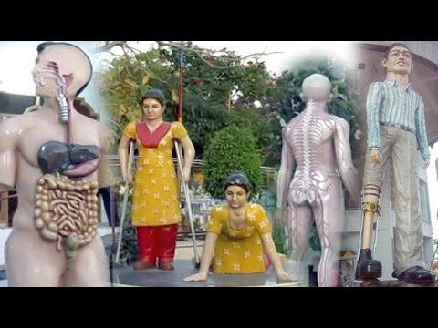 Xxx Mp4 Narayan Seva Sansthan Udaipur Rajasthan Hospital Orthopadic Treatment 3gp Sex