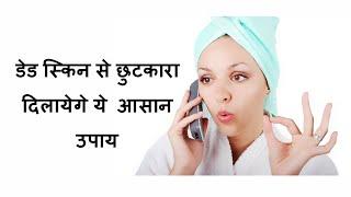 dead skin से छुटकारा चाहती है तो ये करे/How to remove dead and dull skin at home/hindi/