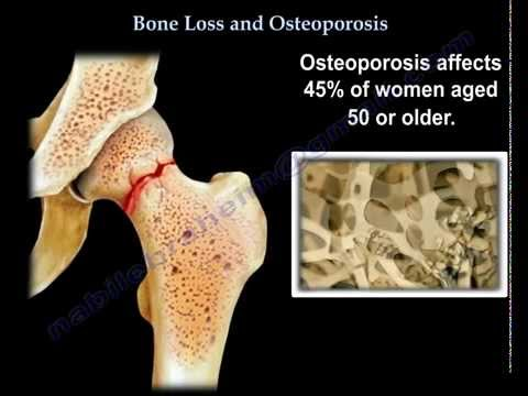 understanding how osteoporosis occurs and affects the human bones It's more than just thin bone — the top 10 myths about osteoporosis dr human services bone health & osteoporosis that osteoporosis occurs.