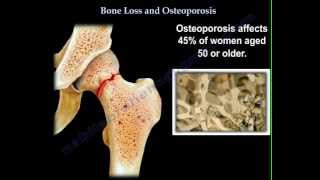 Osteoporosis - Everything You Need To Know - Dr. Nabil Ebraheim