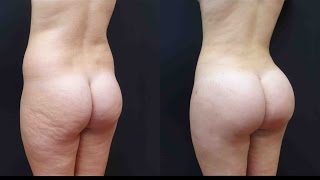Best Brazilian Butt Lift! See her Surgery and Results with 1100cc Per Side!