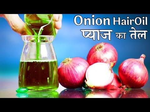 HOMEMADE Onion Hair Oil बालों की अनेक समस्याओं का एक घरेलू उपाय प्याज का तेल