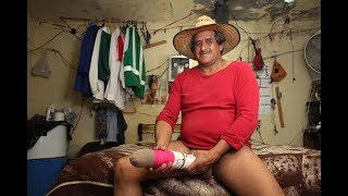 Who is Roberto Esquivel Cabrera, why is his penis so big and is it really the largest in the