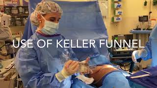 Breast Implant Surgery Video