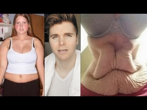 Please Save Yourself, Diet Pills Are NOT Worth It (Weight Loss Scams)