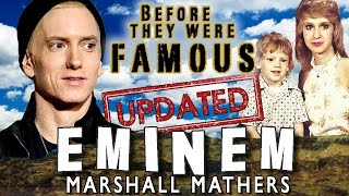 EMINEM - Before They Were Famous - 2016