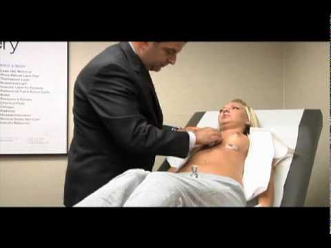 Natural Results of Breast Implants, Breast Enlargement, Breast Enhancement Surgery