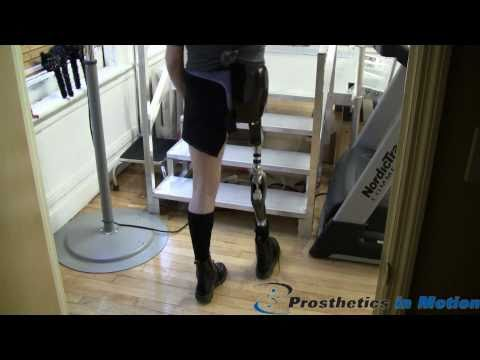 Hip Disarticulation Amputee Excels with the Otto Bock Helix Hip Joint