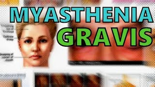 Myasthenia Gravis MADE EASY - Cause, Symptoms, Diagnosis and Treatment of MG - Animation