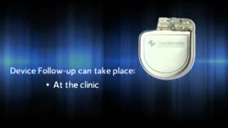 What is an Implantable Cardioverter Defibrillator (ICD)