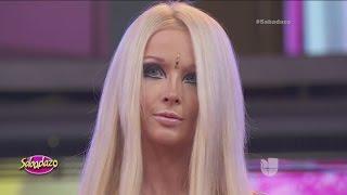 La Barbie Humana revela por qué no sonríe
