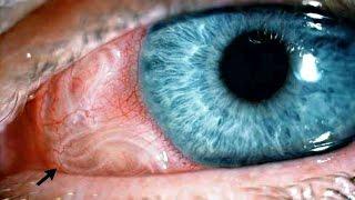 10 lebende Tiere im Menschen gefunden! -Parasiten Gefahr |Entertainment