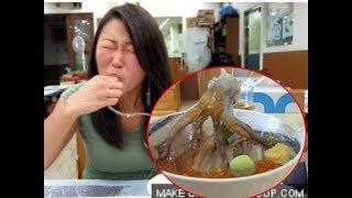 Người phụ nữ đi ăn bạch tuộc sống, vài ngày sau đi khám thấy nguyên đàn bạch tuộc con trong miệng