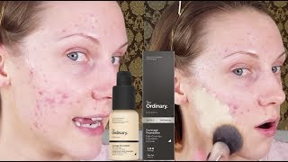 THE ORDINARY COVERAGE FOUNDATION | CAN IT COVER ACNE?