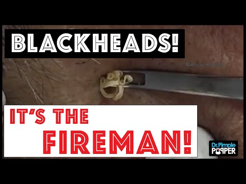 Don t miss these huge blackhead extractions in The Fireman