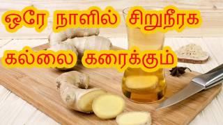 ஒரே நாளில் சிறுநீரக கல்லை கரைக்கும் Siruneeraga maruthuvam