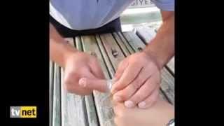 Parmaktan Yüzük Nasıl Çıkartılır?