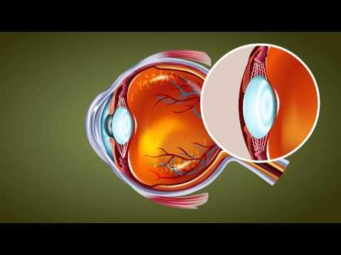 Xxx Mp4 Human Eye Class 10 Tutorial 3gp Sex