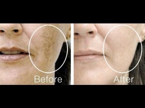 Clear Acne Scars,Remove Dark Spots ,Home Remedy for Black Spots on Face