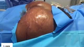 Brazilian Butt Lift With Fat Transfer To Hips - Centre for Surgery