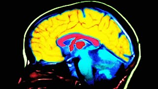 Study Finds This Key Difference In Conservative Brains