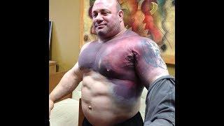 Top 5 Worst Bodybuilding Injuries !