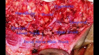 Parotid Surgery : Identification and dissection of facial nerve