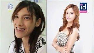 [Let me in Vietsub] Phẫu thuật thẩm mỹ Hàn Quốc - phần 5