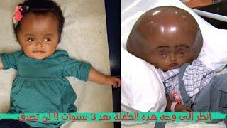 هذه الطفلة الصغيرة وجدوها في قرية هندية فقيرة جداً.. لكن بعد 3 سنوات، انظروا إلى وجه الطفلة...