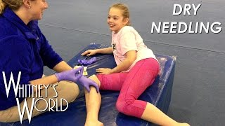 Dry Needling | Tough Gymnast | Stick a Needle in my Knees Please