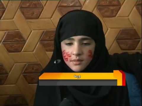 Kabul girl miracle Allah and Muhammad names on face Wagma