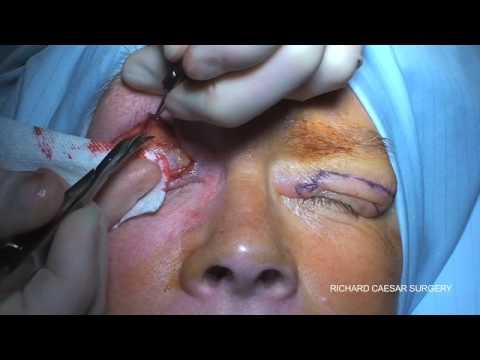 blepharoplasty