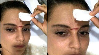 Kangana Ranaut Severely Injured on the sets of Manikarnika, Gets 15 Stitches On Forehead   SpotboyE