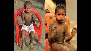 বিরল রোগে আক্রান্ত মেহেদীর সাহায্যে এগিয়ে আসুন। Mehedi Hasan ┃ Help To Save Lives ┃ Bangladesh┃HTSL