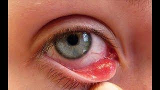 شاب يفعل هذا كل ليلة سبب له سرطان العين يجب ألا تفعل هذا كل يوم !