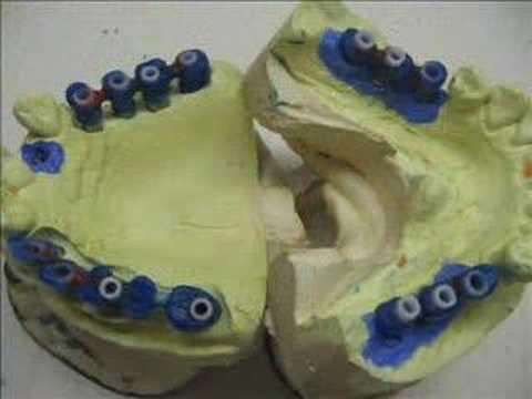 16 elementos em fixa implanto suportada