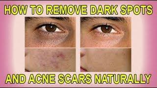 how to clear dark acne scars fast