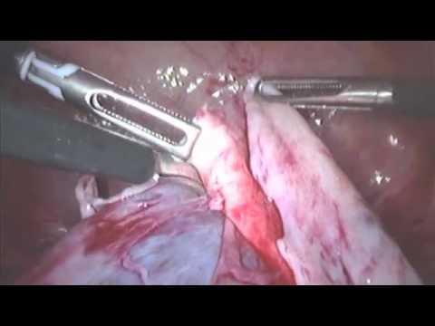 Laparoskopi Kista Ovarium oleh Dr.Relly Y Primariawan. SpOG