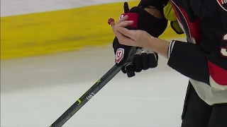 Methot gruesome injury exposed lack of protection in gloves